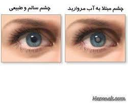 مقاله درمورد اب سیاه چشم